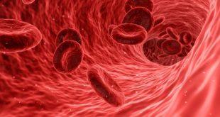 Dalteparin, Antikoagulan Pertama untuk Anak Tromboemboli Vena Disetujui FDA