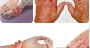 Upadacitinib, Pilihan Baru Pengobatan Rheumatoid Arthritis