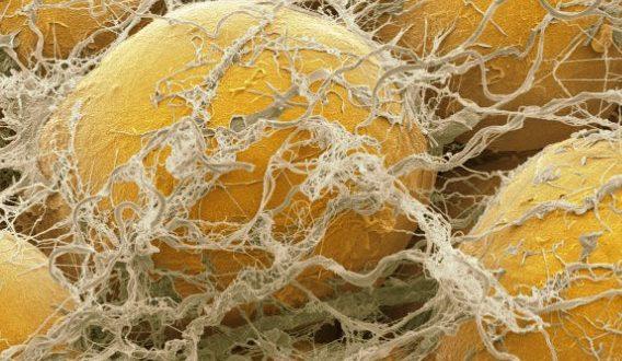Sel-sel lemak yang dikelilingi oleh jaringan ikat, terlihat pada perbesaran ribuan kali dari ukuran mereka sebenarnya. Setiap sel lemak mengandung lipid tunggal, atau tetesan minyak. (Science Photo Library)
