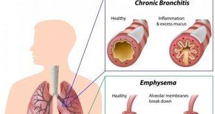 Revefenacin : Obat Pertama Penyakit Paru Obstruktif Kronik (PPOK) Dosis Sekali Sehari